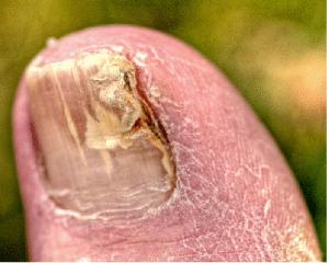 nail fungus, thyme, thymol