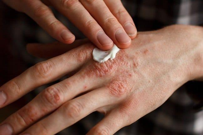 Salicylic acid, skin treatment, 5{648ff2b140dd79f8b10f01740237e66061b7c0f8b396ba52d99047c684c8722c}
